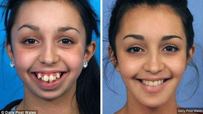 Perubahan Menakjubkan, Wanita Ini Jadi Cantik Setelah Operasi Gigi